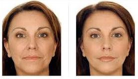 Mesoterapia botox - Technica soft botox