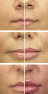 filler labbra-volume prima dopo